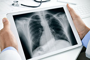 Being a Radiologic Technologist: What X-rays Can Show;